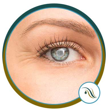 Cornea Disorders in Wesley Chapel, FL